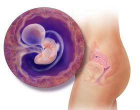 Часткова і повна відшарування плодового яйця на ранніх строках вагітності: причини і тактика дій фото