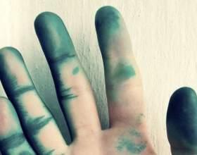 Чим відмити зеленку з шкіри? Корисні поради фото