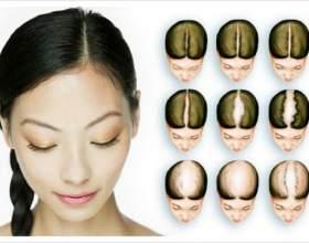 Що таке дифузне випадання волосся? Способи лікування фото