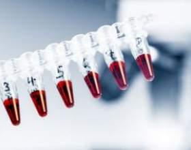 Що таке ггтп в аналізі крові? Причини і лікування патології фото