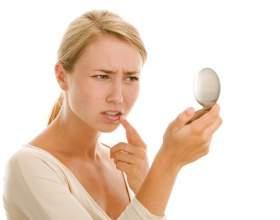 Герпес на губах - лікування фото
