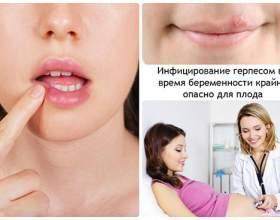 Герпес на губі під час вагітності: причини появи, можливі наслідки і лікування. Які мазі можна застосовувати? фото