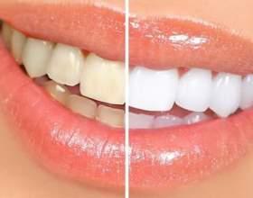 Голлівудська усмішка з bliq pen за тиждень! фото