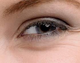 Гусячі лапки під очима фото