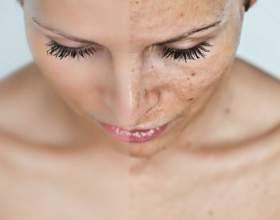 Позбавляємося від подразнень швидко, або як не дати примхливої   шкірі зіпсувати вам настрій фото
