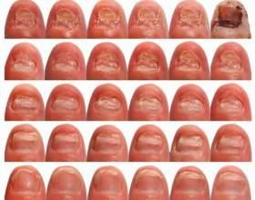Йодинол від грибка нігтів: відгуки і способи застосування фото