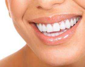 Як швидко відбілити зуби фото