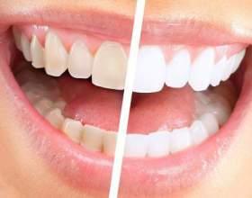 Як чистити зуби содою, щоб відбілити фото