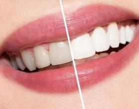 Як відбілити зуби в домашніх умовах без шкоди емалі? Чи можна використовувати соду і перекис водню? фото