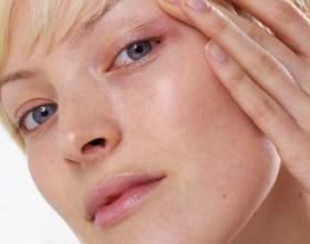 Як прибрати почервоніння на обличчі? фото