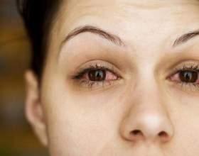 Краплі для очей від запалення для дітей і дорослих. Левоміцетину, визин і інші - які краплі кращі? фото