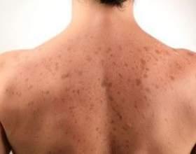 Коричневі плями на шкірі фото