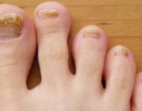 Лікування грибка нігтів оцтом: відгуки користувачів і фахівців фото
