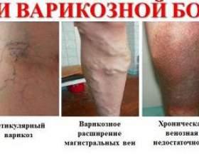 Лікування варикозного розширення вен на ногах фото