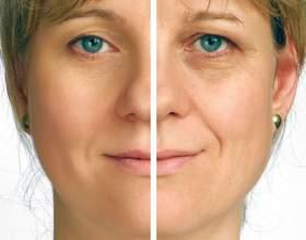 Мезоніті для підтяжки обличчя: відгуки про переваги і недоліки процедури. Що таке мезоніті? фото