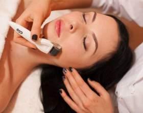 Мікронідлінг - лікування і омолодження шкіри сучасними способами фото
