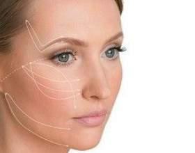 Нитки для підтяжки обличчя - сучасний ліфтинг шкіри фото