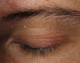 Чи небезпечні жировики на обличчі? фото