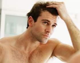 Від чого лупа на голові у чоловіків фото