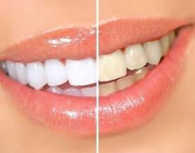 Відбілювання зубів перекисом водню: відгуки фото