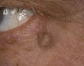 Папіломавірусна інфекція: як лікувати на шиї і в інших місцях, симптоми, аналіз на папіломавірусна інфекцію у жінок фото