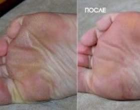 Педикюрні носочки, як вони працюють? фото
