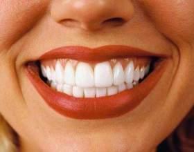 Перекис водню для відбілювання зубів фото