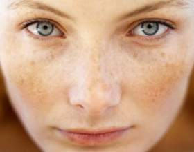 Пігментні плями на обличчі: лікування фото