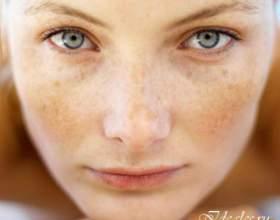 Пігментні плями на обличчі. Причини появи фото