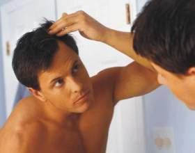 Причина випадіння волосся на голові у чоловіків фото