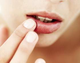 Причини виникнення і способи лікування хейліту на губах фото