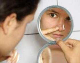 Проблемна шкіра обличчя: лікування прищів і вугрів, причини виникнення фото