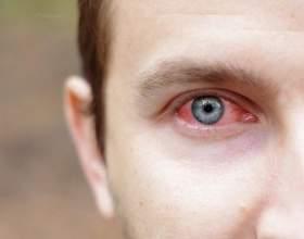 "Протизапальні краплі для очей. Інструкція по застосуванню альбуцида, тобрексу ® С""РѕС'Рѕ"
