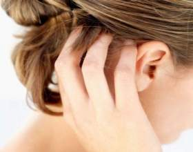 Псоріаз на голові: симптоми і лікування фото