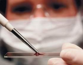 Цукор в крові: норма у жінок фото