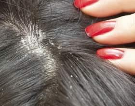 Себорейний дерматит волосистої частини голови: причини, лікування у дорослих і дітей фото