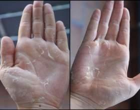 Лущення шкіри на долонях фото