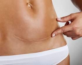 Скільки триває за часом операція кесарів розтин з епідуральної і загальною анестезією? Скільки лежать в пологовому будинку після кесаревого розтину? фото
