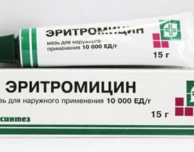 Таблетки від прищів на обличчі для підлітків і дорослих - антибіотики, гормональні препарати. Відгуки про застосування фото
