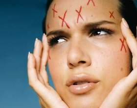 Вчені знайшли головну причину проблем зі шкірою фото