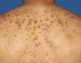Види пігментних плям на шкірі і їх лікування фото