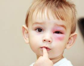 Вірусний кон`юнктивіт у дітей: симптоми і лікування фото