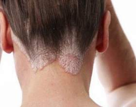 Себорея на обличчі: причини, симптоми, діагностика та лікування фото