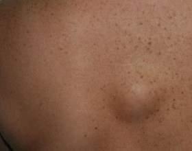 Жировики під шкірою фото