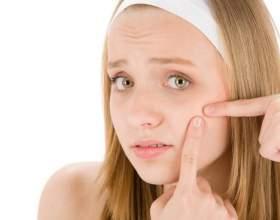 Зінеріт або базірон: що краще для лікування акне? фото